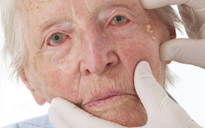 Elder abuse: spotting the signs and advice for carers